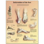 Deformities of The Feet Anatomical Chart